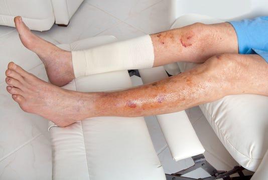Medical Senior With Thin Skin Injury