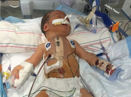 Jude Hayes 17 months ago, after surgery for his heart defect.