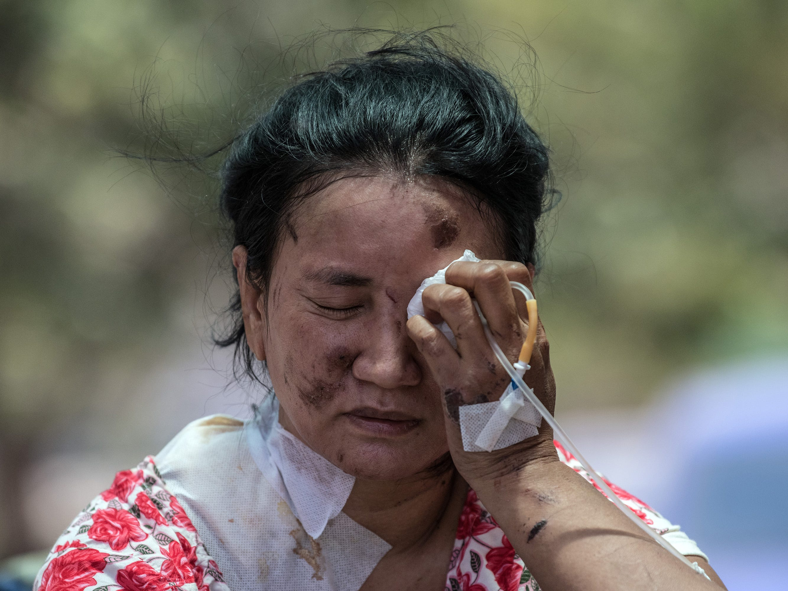 An injured woman holds a dressing to her eye as she waits outside a hospital in Palu, Indonesia, Oct. 3, 2018.