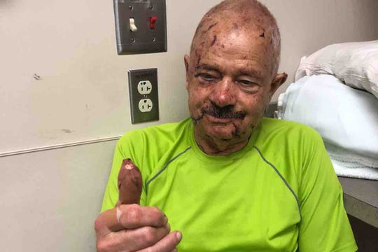 Werner Stierle was attacked from behind while walking along the Ten Mile Greenway in West Knoxville on Sept. 29. Family members said he required hundreds of facial stitches, more than 30 staples in his head and surgery to repair a broken finger.
