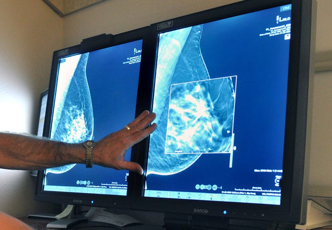 In this file photo, a radiologist compares an image from a 2-D technology mammogram to the new 3-D Digital Breast Tomosynthesis mammography in Wichita Falls, Texas. The technology can detect much smaller cancers earlier.