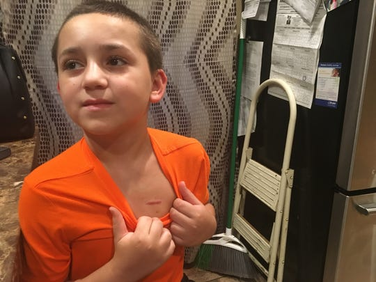 Cameron Smith, 12 displays the scar from the port for his leukemia treatment.