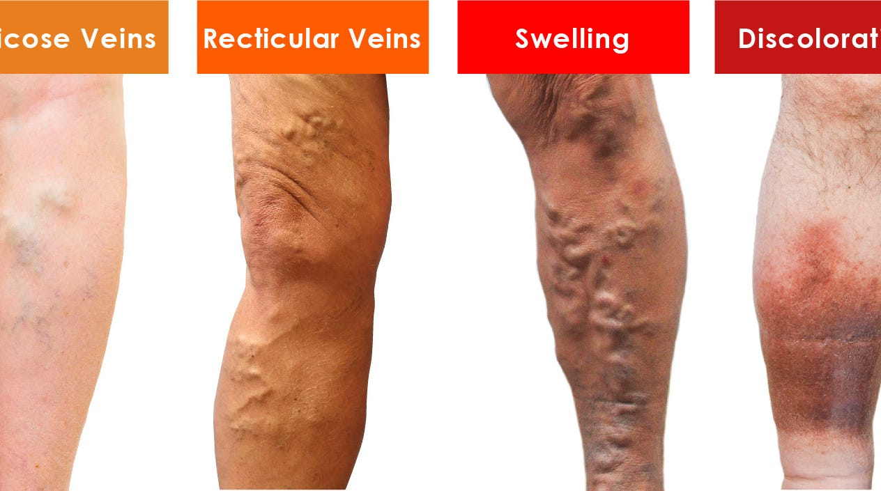 """We use the term """"ugly legs"""" because this is the stage at which a patient's veins start to physically alter the appearance of their legs."""