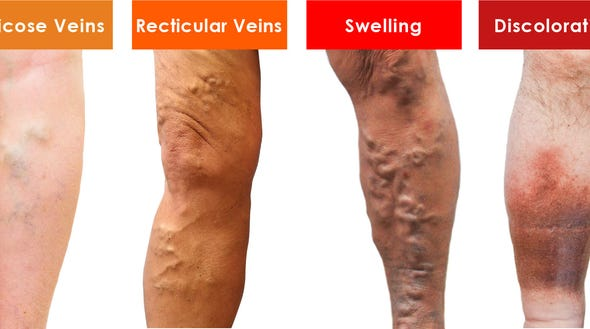 "We use the term ""ugly legs"" because this is the stage at which a patient's veins start to physically alter the appearance of their legs."