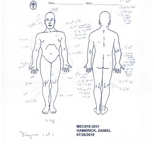 A medical examiner's report shows the three gunshot wounds that killed Daniel Hambrick: one to the back of his head and two in his back.