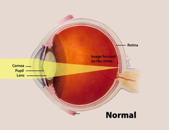 A color illustration of a normal eye highlights the cornea, pupil and lens, and the way an image focuses on the back of the eye, or retina.