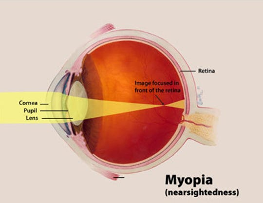 A color illustration of myopia highlights the cornea, pupil and lens, and the way an image focuses in front of the retina — instead of on the retina itself.
