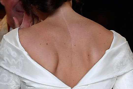 The scar on the back of Princess Eugenia of York is clearly visible when she arrives for her wedding with Jack Brooksbank in the Chapel of St. George, Windsor Castle, in Windsor, on October 12, 2018.