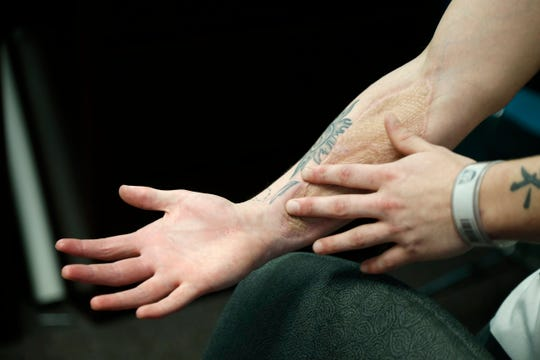 Dan Stieritz, 25, of Fort Mitchell, shows the scar left from operations to save his arm after he suffered from compartment syndrome at Talbert House in the Pendleton neighborhood of Cincinnati on Monday, Sept. 17, 2018. Stieritz suffered from compartment syndrome after passing out while overdosing on heroin.