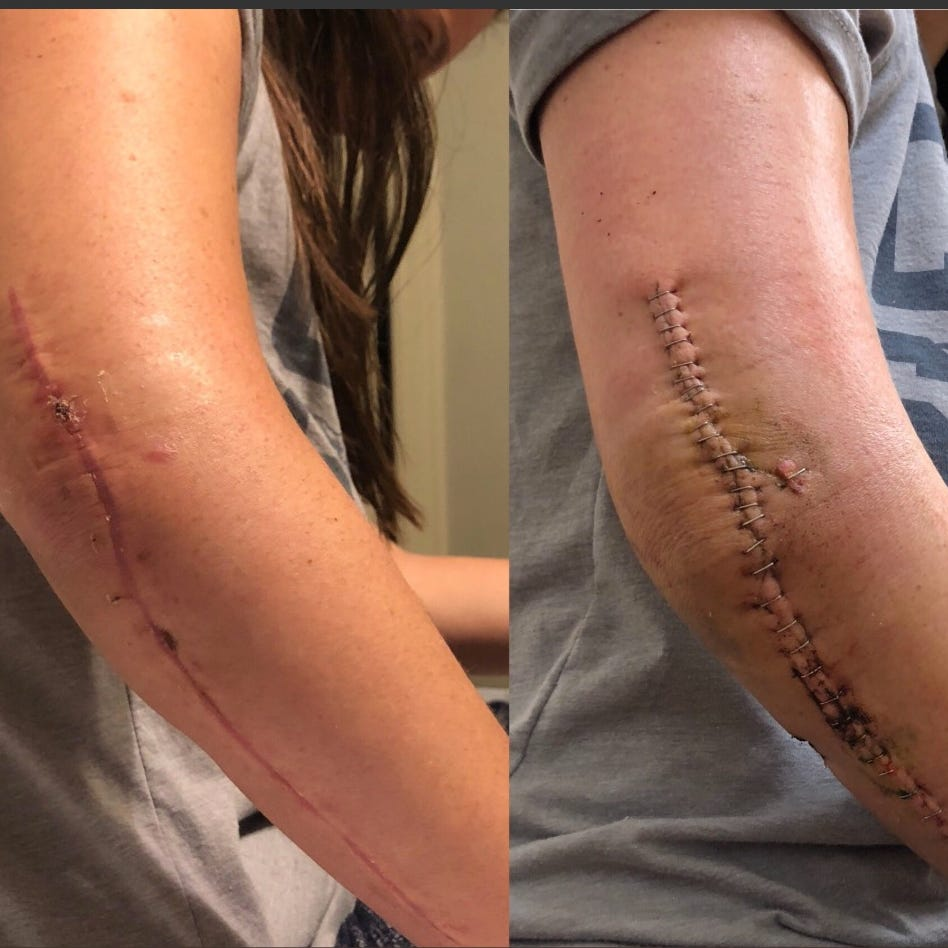 Woman shot 12 times in Fifth Third shooting shares photos of healing progress