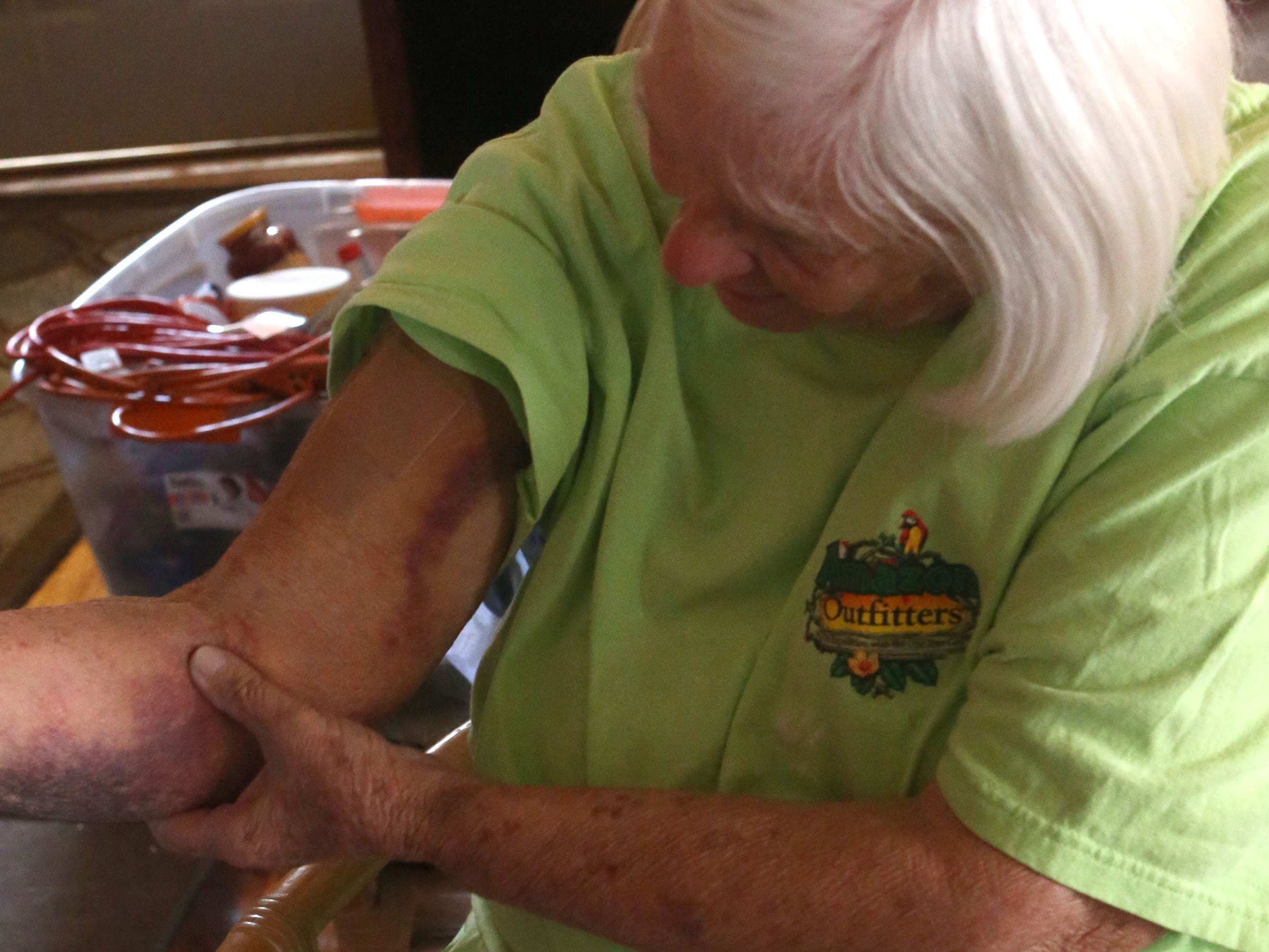 Elizabeth Radney, grandmother of Sarah Radney, an 11 year old girl who died during Hurricane Michael in Donalsonville, Ga., shows some of the bruising she received from the post and concrete on Thursday, Oct. 18, 2018.