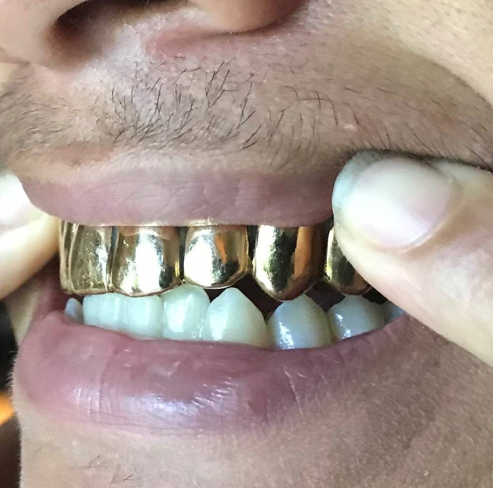 Fort Pierce man arrested after recovered 'grill' re-fitted to robbery victim's mouth