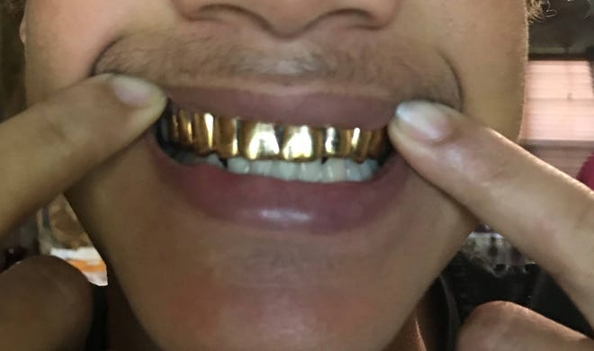 Gold grill from the case
