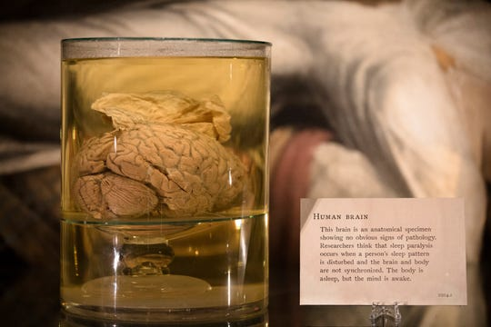 A brain on display at the MŸtter Museum in Philadelphia, Penn., on Friday, Oct. 19, 2018.