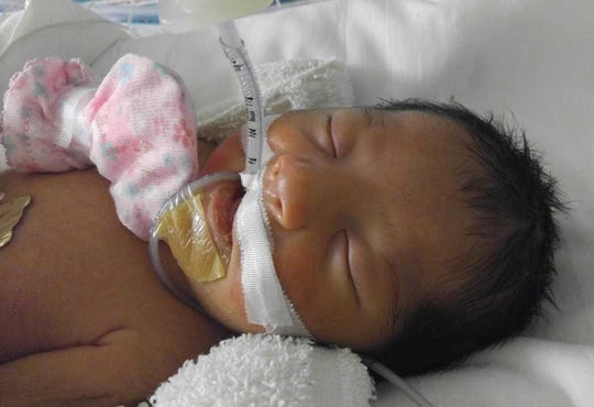 Karolynn needed to remain intubated after her birth.