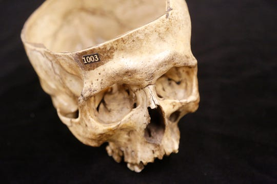 The skull of David Stocking Monday, October 22, 2018, at the Tippecanoe County Historical Association, 1001 South Street in Lafayette. Stocking was executed by hanging on the Tippecanoe County Courthouse  lawn in 1856 for the crimes of robbery, arson and murder. An autopsy was performed on Stocking following his execution to see if there were any differences between the criminal brain and that of a normal person.