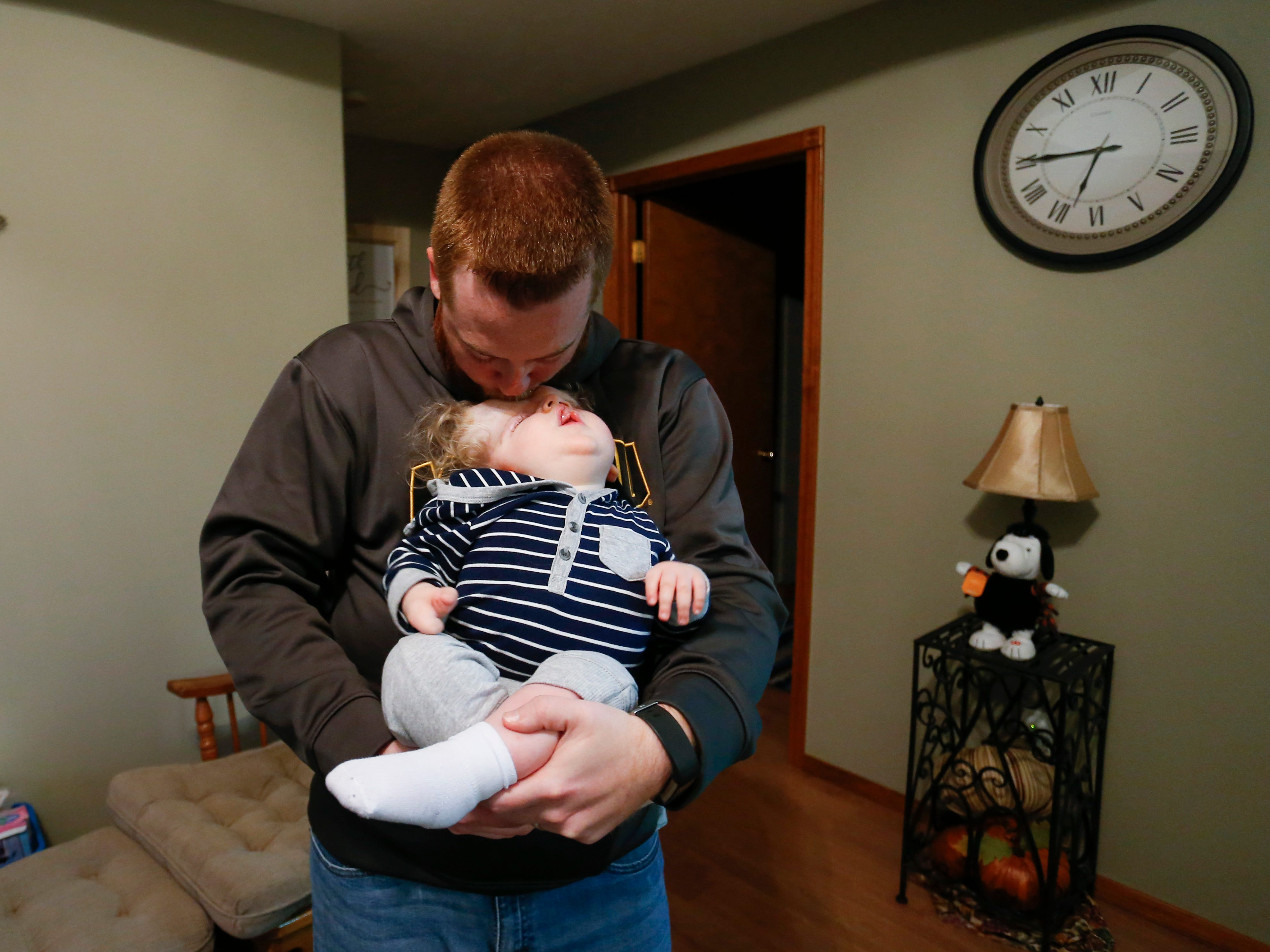 Tom Masterson kisses his one-year-old son Owen on his forehead as he holds him at their home on Thursday, October 11, 2018. Owen was born missing the top part of his skull and was not expected to survive childbirth.