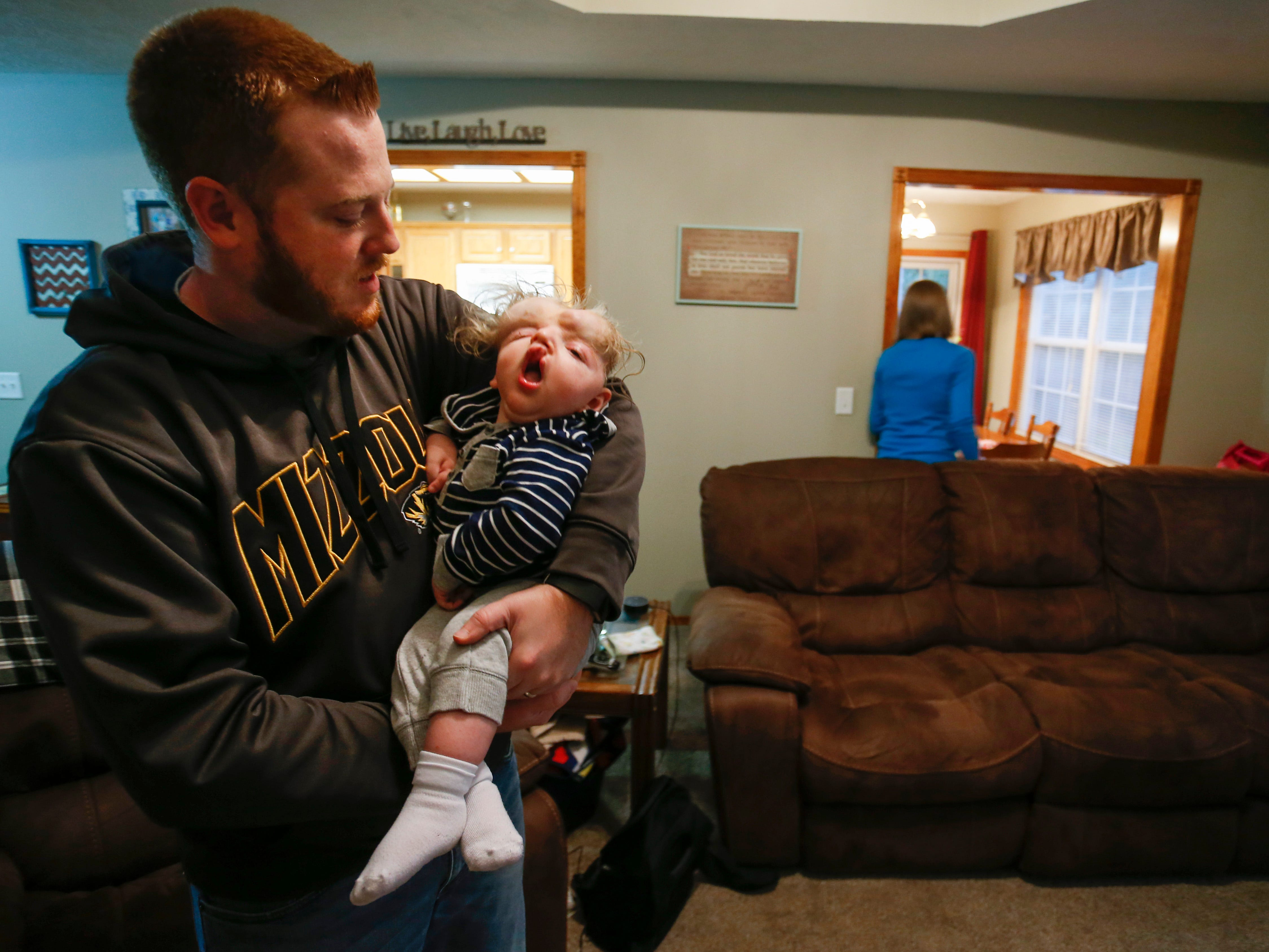 Tom Masterson holds his one-year-old son Owen at their home on Thursday, October 11, 2018. Owen was born missing the top part of his skull and was not expected to survive childbirth.