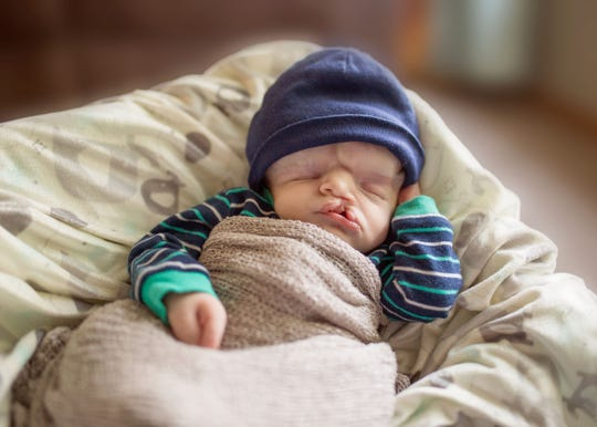 An On Angels' Wings photographer took this photo of Owen Masterson shortly after he was born. Owen was born without much of his skull and was not expected to survive birth.
