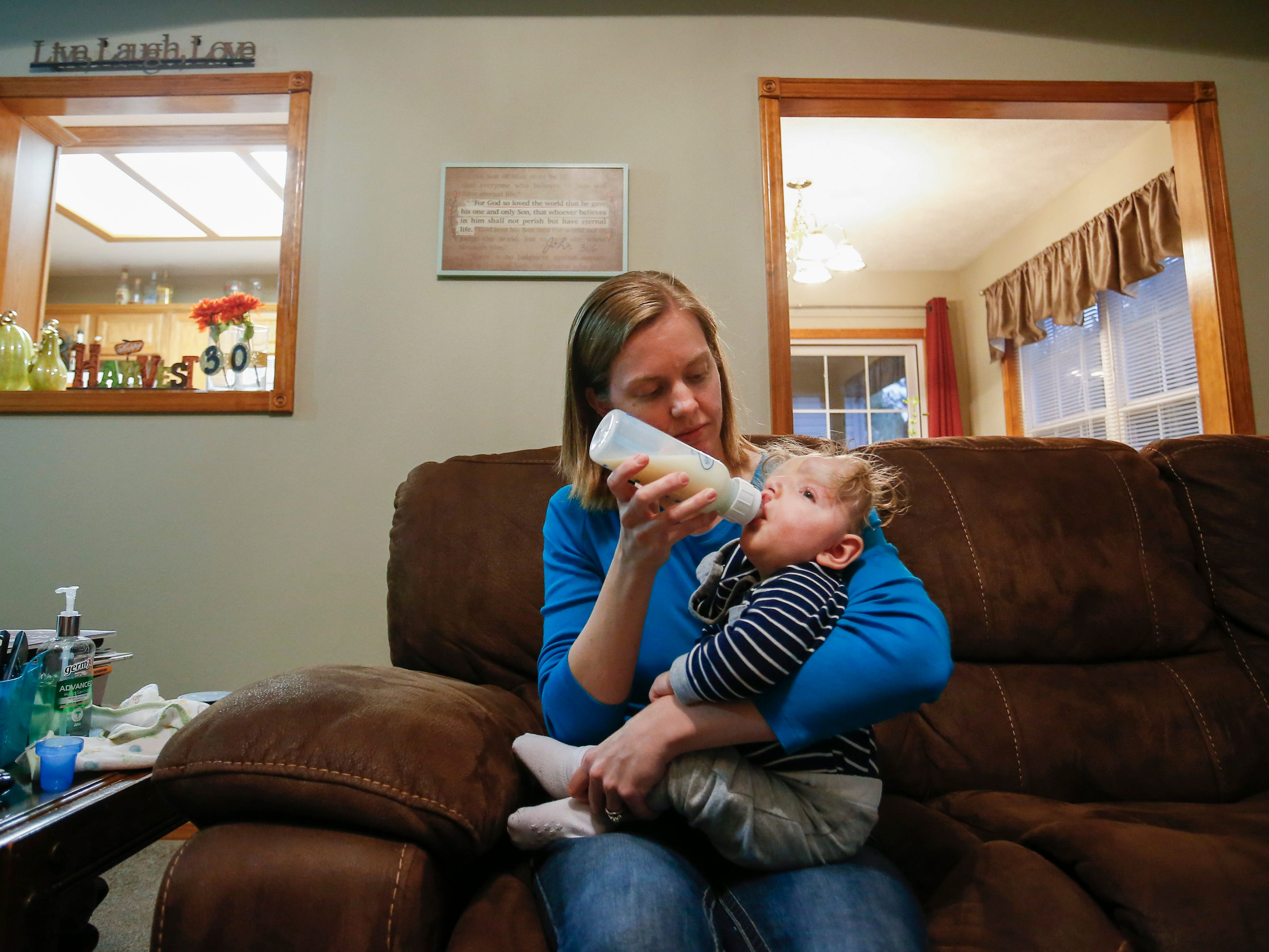 Jessica feeds her one-year-old son Owen at their home on Thursday, October 11, 2018. Owen was born missing the top part of his skull and was not expected to survive childbirth.