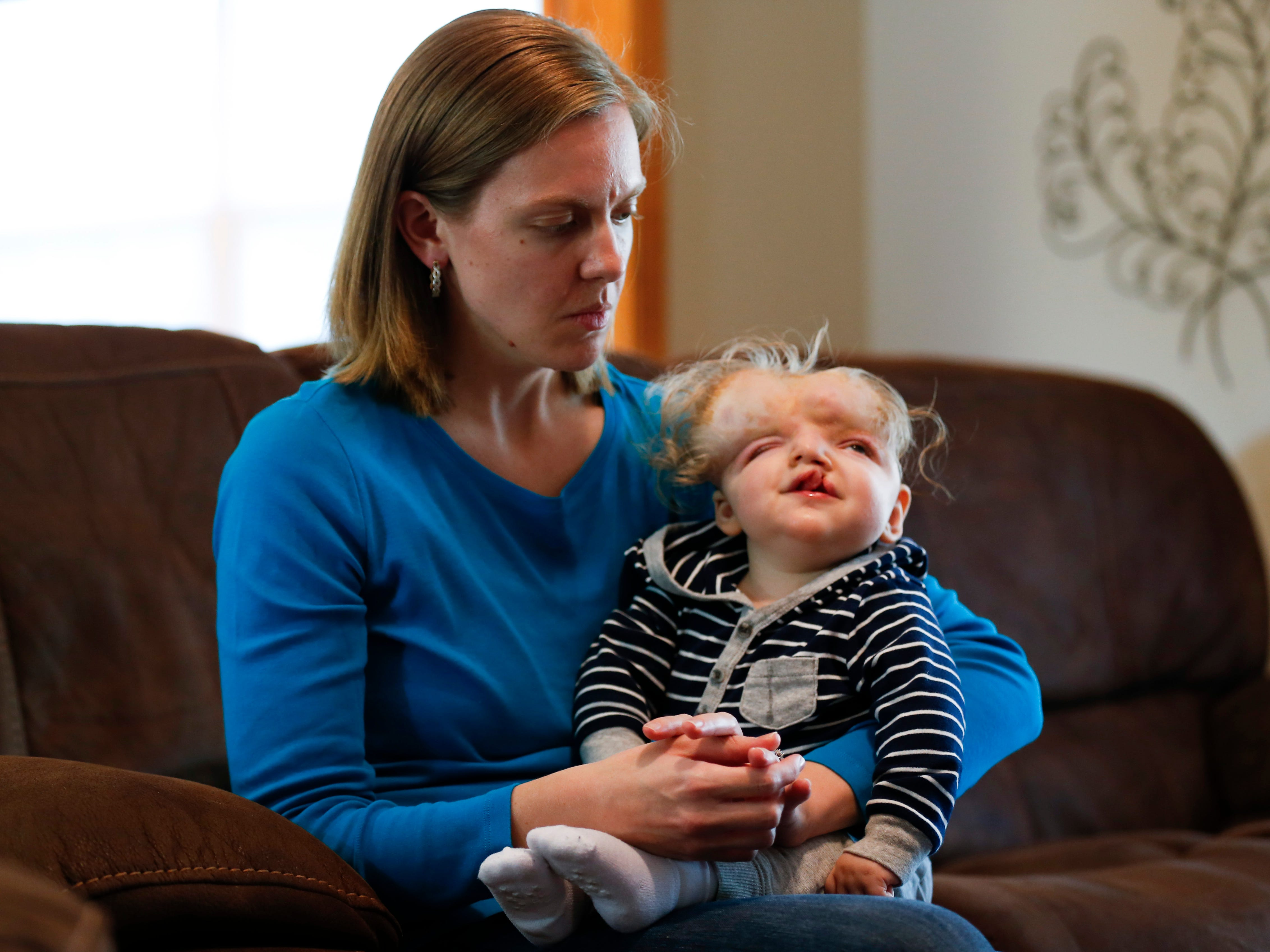 Jessica Masterson holds her one-year-old son Owen at their home on Thursday, October 11, 2018. Owen was born missing the top part of his skull and was not expected to survive childbirth.