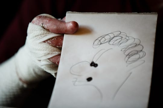 Henry DeAngelis, 18, holds a doodle he made. Over the summer, scar tissue caused by epidermolysis bullosa fused his thumb to his hand making it impossible for DeAngelis to write. He had surgery to regain control of his hand.