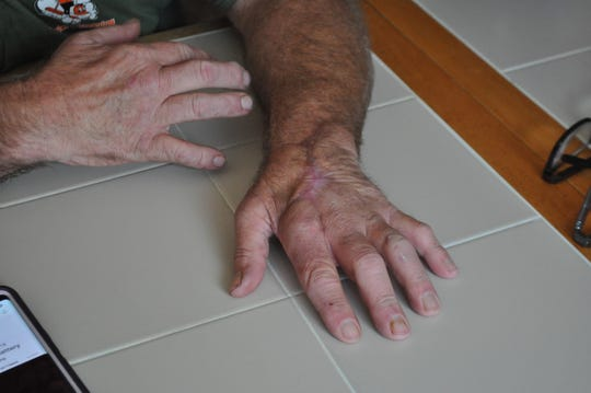 """Kenny Watts lays his left hand on the table on Oct. 24, 2018. His hand was nearly amputated after it was infected with Vibrio vulnificus, a """"flesh-eating bacteria"""" said to be common in brackish water during the summer months."""