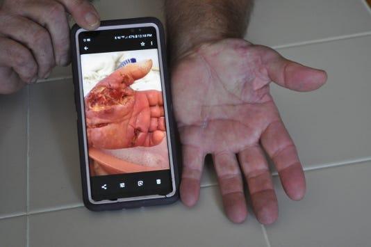 Watts hand