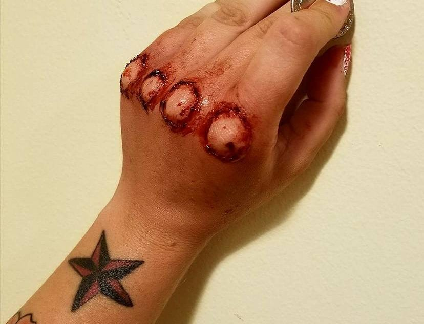 """Bloody knuckles."""