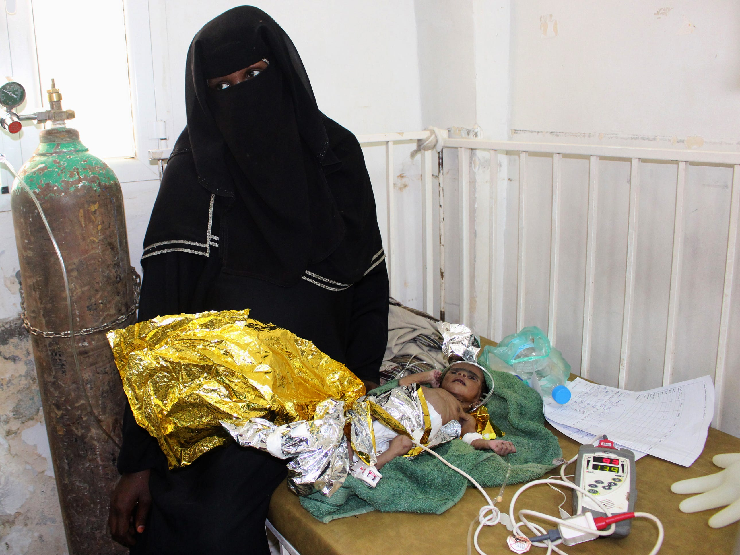 A Yemeni newborn girl, suffering from severe malnutrition, receives care at a hospital in Yemen's northwestern Hajjah province, on Oct. 31, 2018.