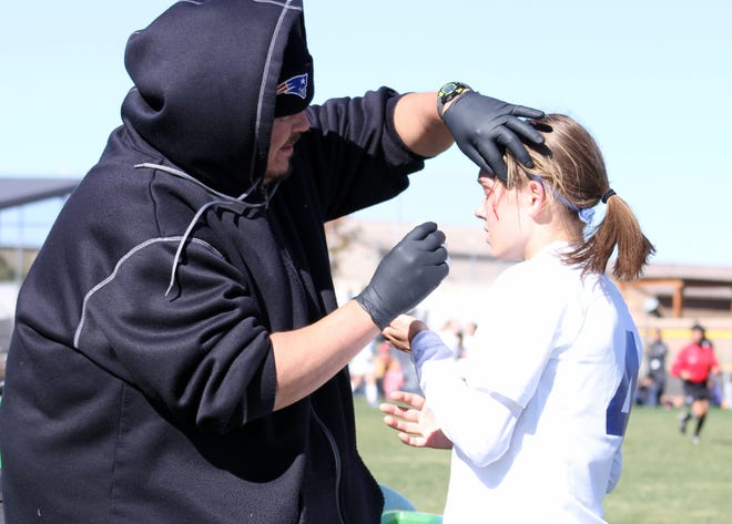 Alexa Dugan gets a cut on her forehead checked out by a trainer in the second half of Saturday's match.