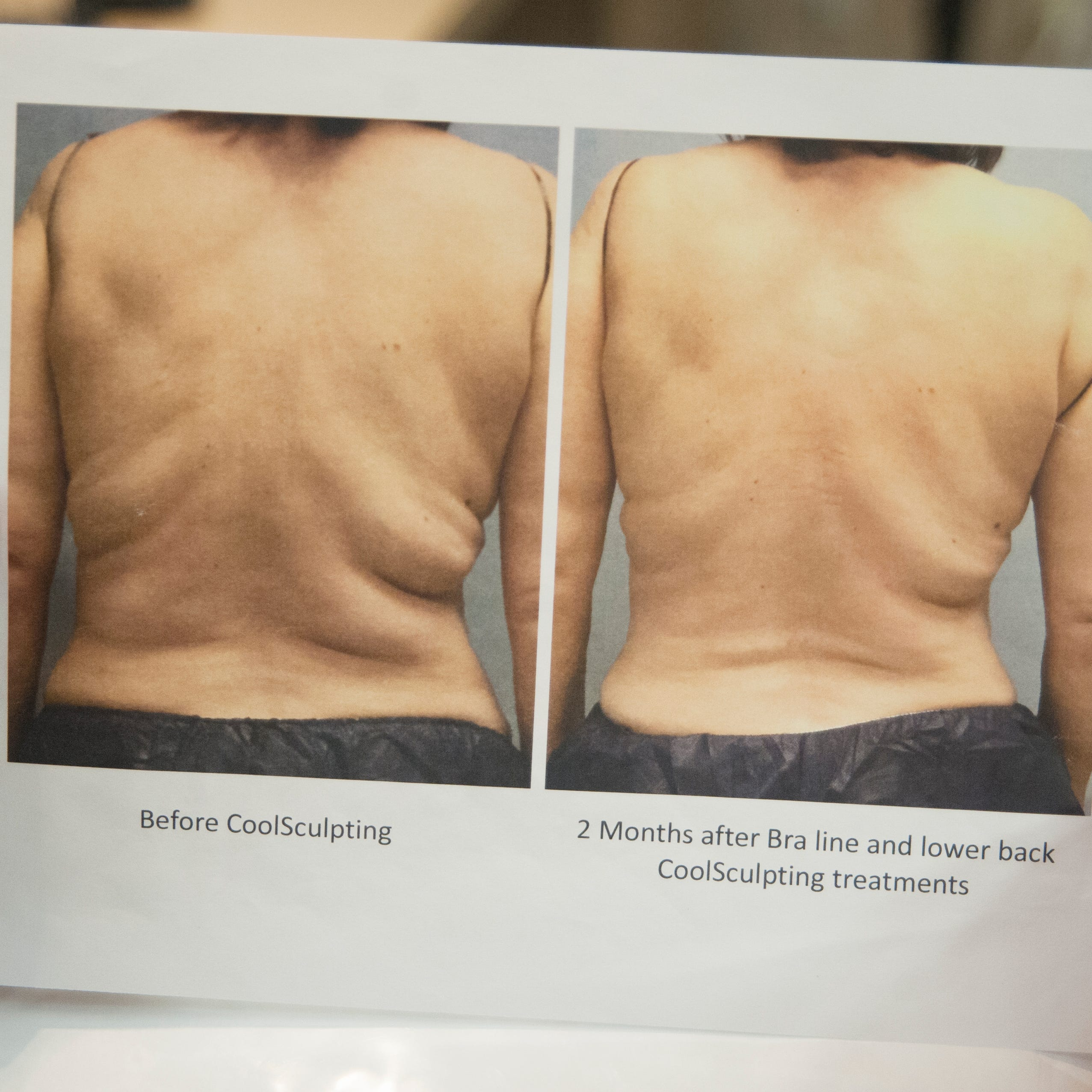 Freeze your fat? Cool Sculpting is gaining popularity
