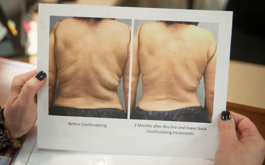 Certified CoolSculpting specialist Donna Arnold displays before and after photos of a patient who recieved CoolSculpting treatment at Davis Cosmetic Plastic Surgery in Cherry Hill.  The CoolSculpting fat-freezing procedure is a non-surgical fat-reduction treatment that uses controlled cooling to reduce body fat.