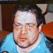A photograph taken March 17 shows facial injuries to Paul Bagozzi, who was a patient at a Livonia psychiatric clinic when the injuries occurred. The photo was shown to the jury during the trial of Hanumaiah Bandla, a psychiatrist who was found not guilty of failing to report patient abuse.