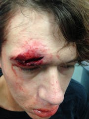 A corrections officer from Kenton County jail shot this picture of Steven Jordan after the Nov. 2 incident.
