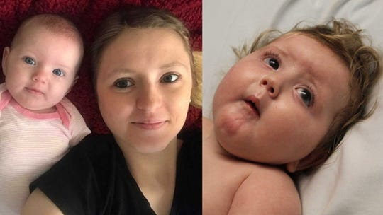 Sierra Hunt recalls the moment her life changed, when her baby almost lost her life.