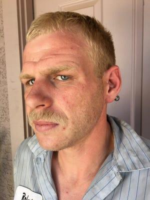 Robert Moore's left cheek a few days after the alleged assault.