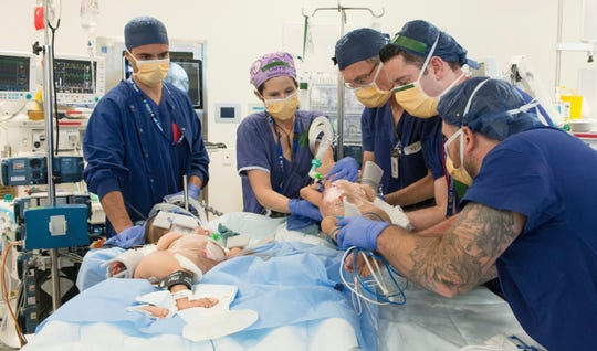 This photo provided by RCH Melbourne Creative Studio, shows surgery on the 15-month-old girls at the Royal Children's Hospital Melbourne, Australia Friday, Nov. 8.