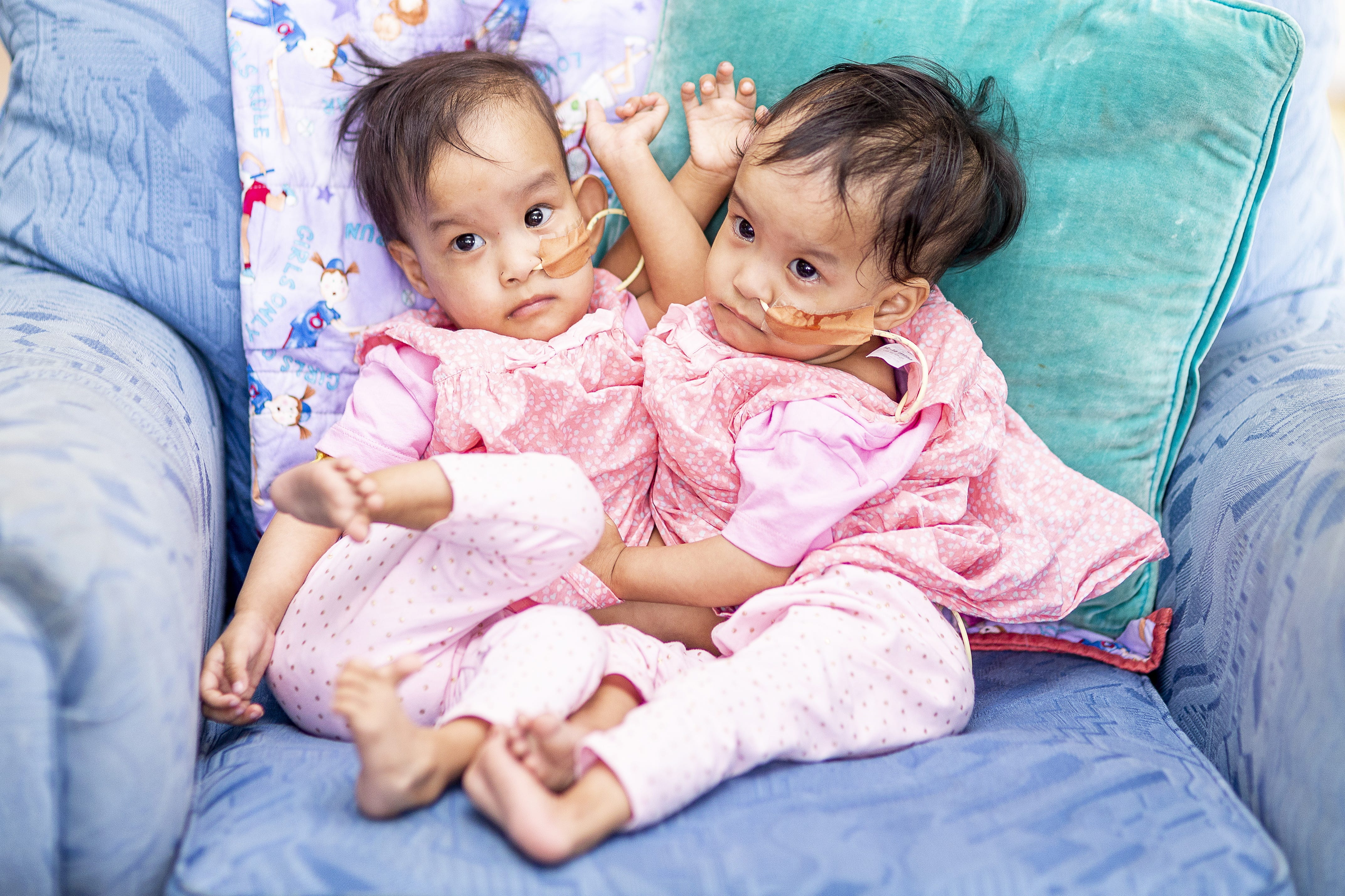 Doctors Perform 26-Hour Surgery To Separate Conjoined Twins