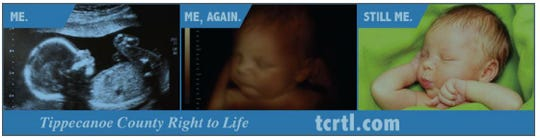 This is the 2-by-8-foot advertisement Tippecanoe County Right to Life sought to place on the side of a CityBus in late 2017. CityBus, Greater Lafayette's public transportation company, rejected it. Right to Life filed a suit in July, challenging that decision.