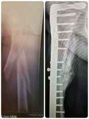 An x-ray from Shirley Smoyak's accident.