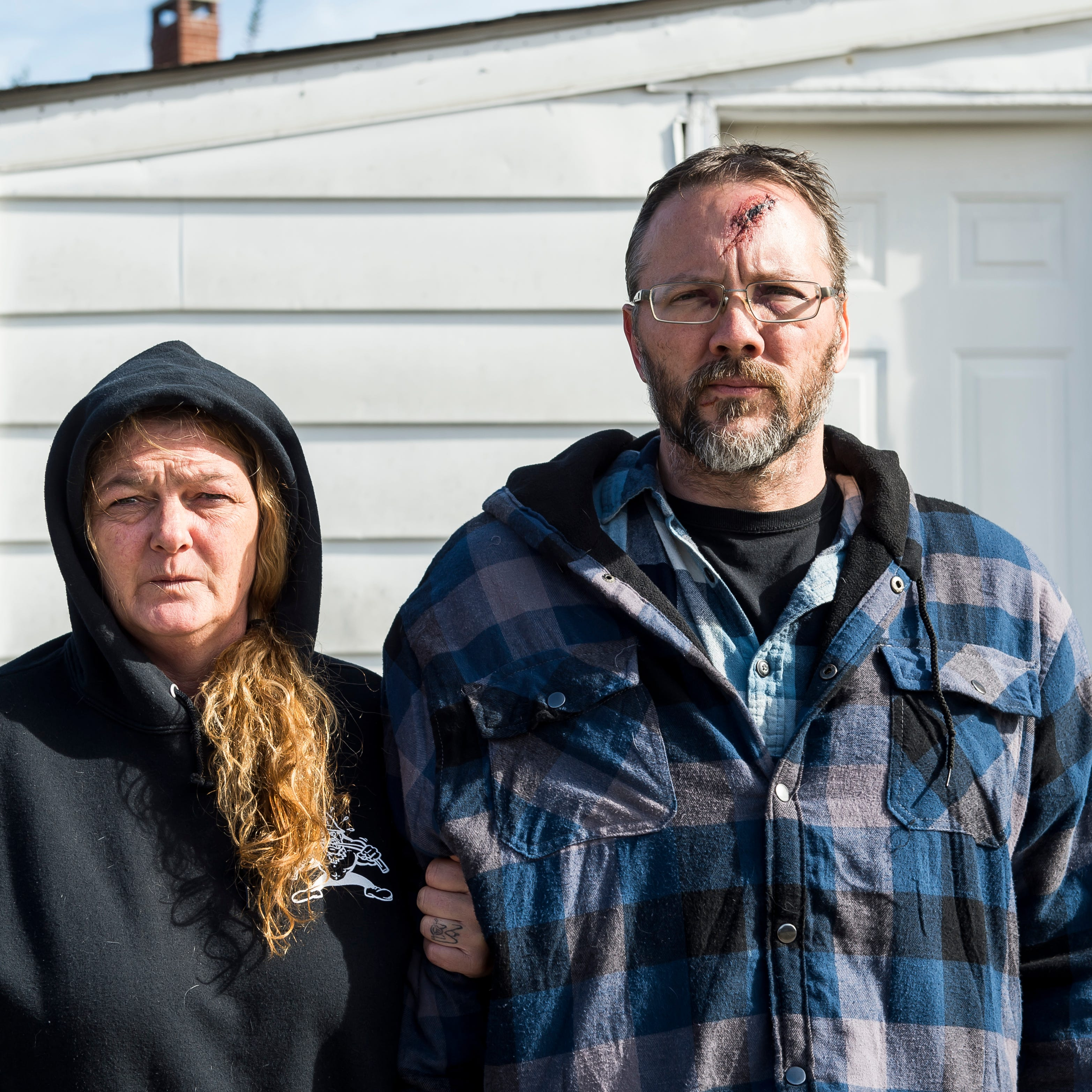 Joey and Aric Maczis stand outside their Littlestown Borough home on Wednesday. The Maczis, along with a friend, were attacked in their home by two individuals early Monday morning. Aric was hit with a meat cleaver and suffered a cracked skull and cracked sinus.