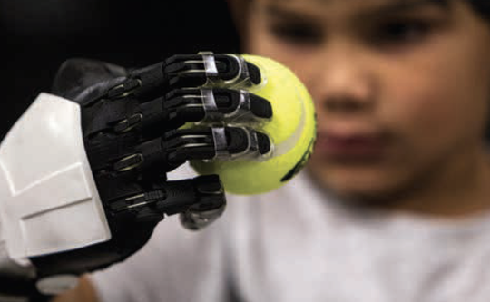 Jacob's new hand, which was donated with no charge to his family, is designed with small cables running within the plastic fingers and across the back of the wrist.
