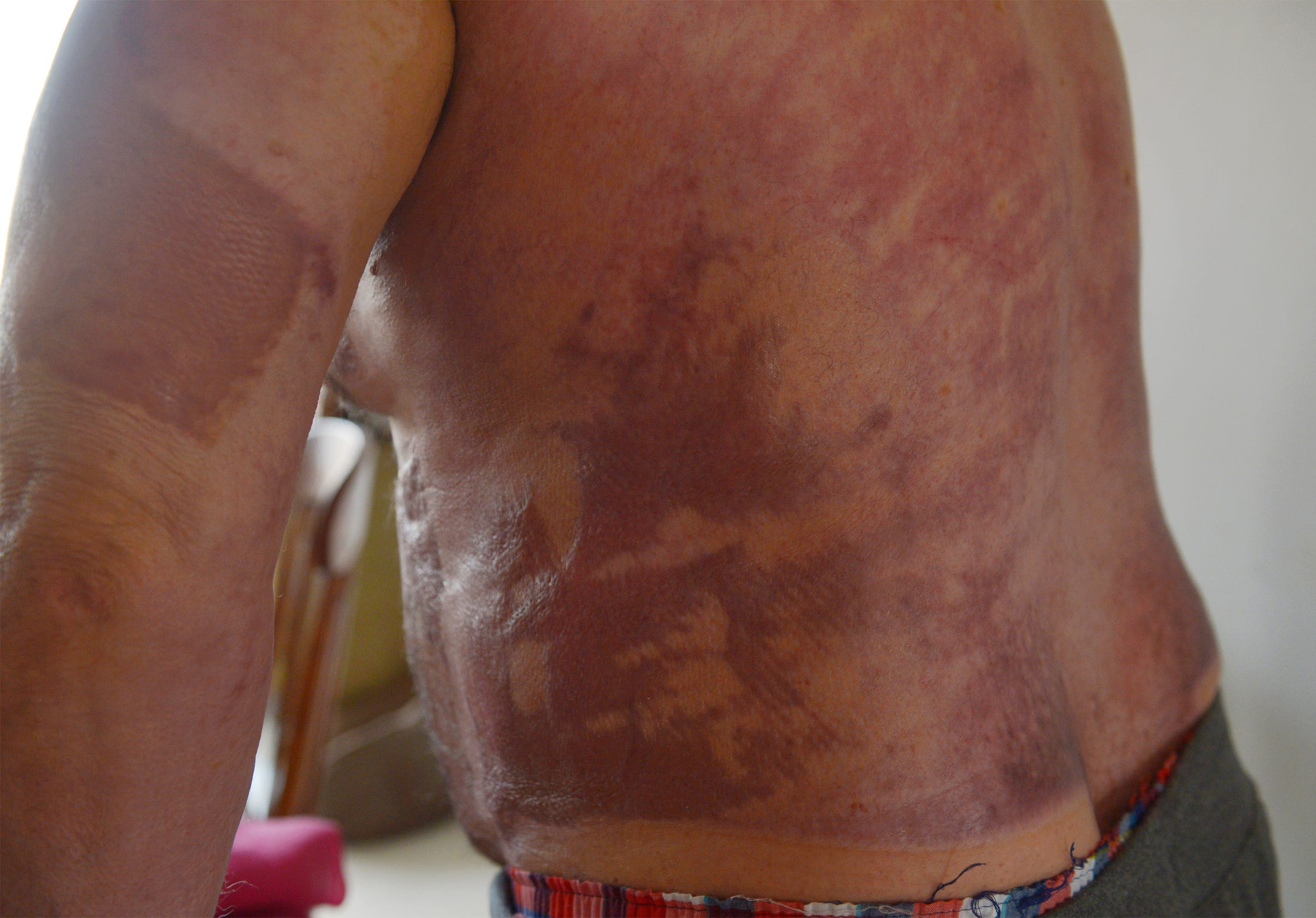 Chuck Merja was burned over most of the left side of his body in a farming accident in May of this year. His injuries required a long hospital stay and extensive skin grafts.