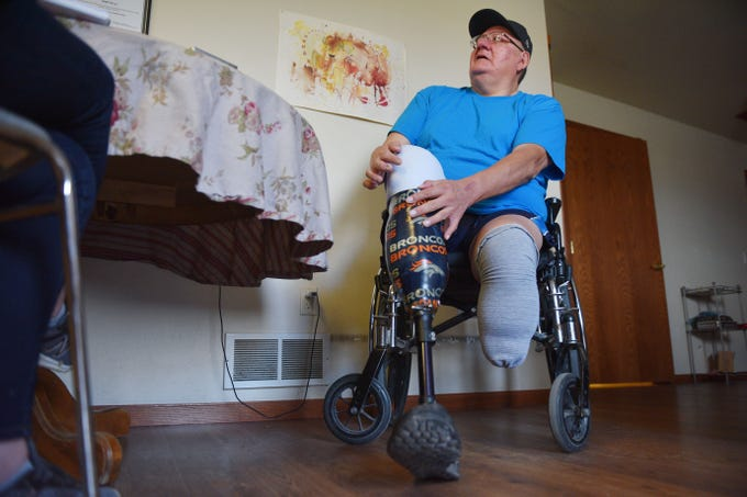 Lino Spotted Elk showed a torn prosthetic sleeve Tuesday, Sept. 18, at his home in Rosebud. Spotted Elk has blood and bone cancer. He had two amputation surgeries to remove the cancer in his legs after he was misdiagnosed with diabetes.