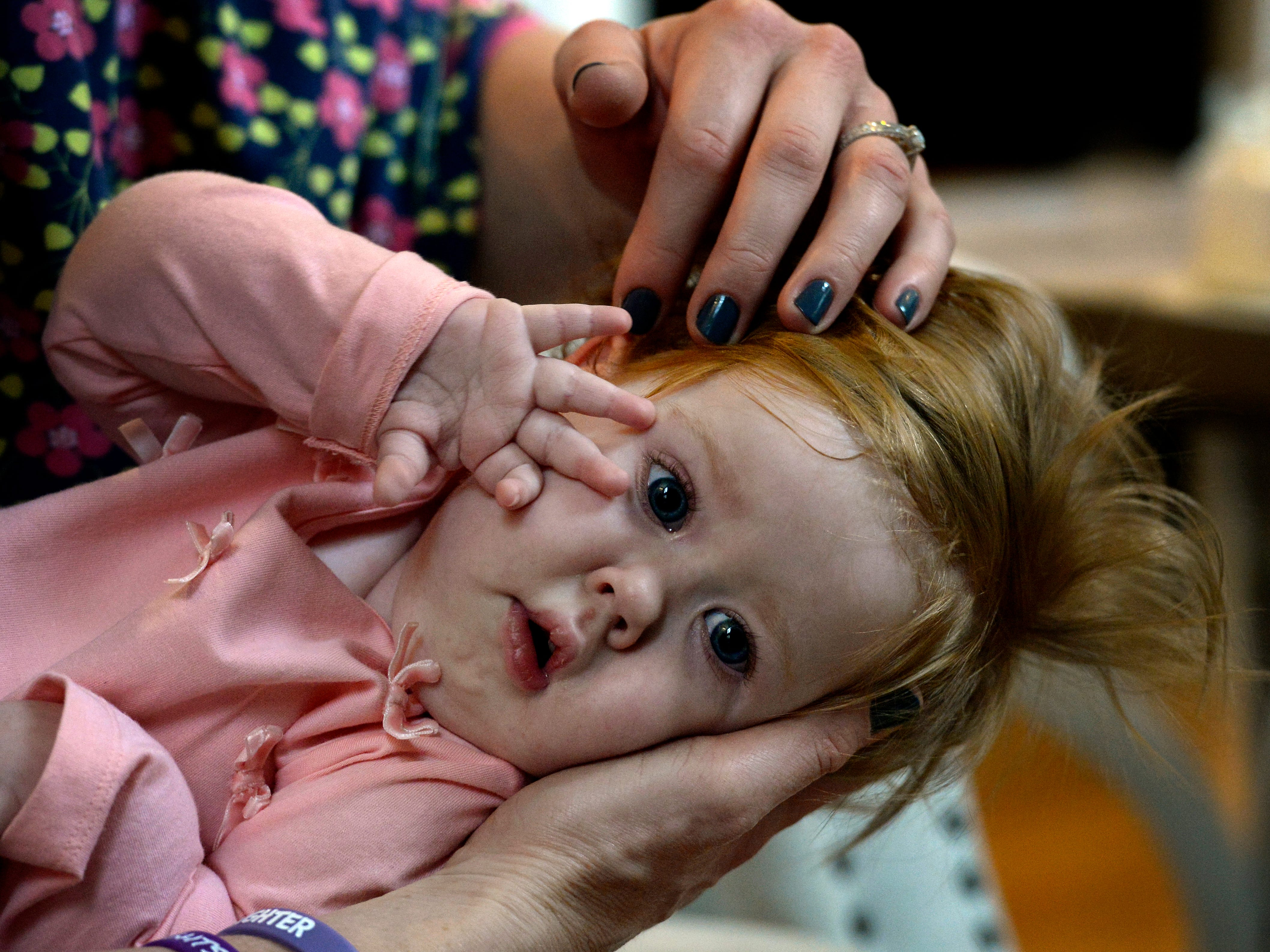 Caring for children with severe disabilities financially devastates Tennessee families