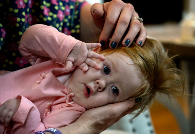 Rondi Kauffmann caresses the hair of her daughter Adelaide on Tuesday, Nov. 13, 2018, in Burns, Tenn. Adelaide has spinal muscular atrophy, which causes progressive weakening of her motor functions. Her parents make too much money to get Medicaid benefits, but they cannot afford the $150,000 annual cost of a night nurse to care for Adelaide when she sleeps.