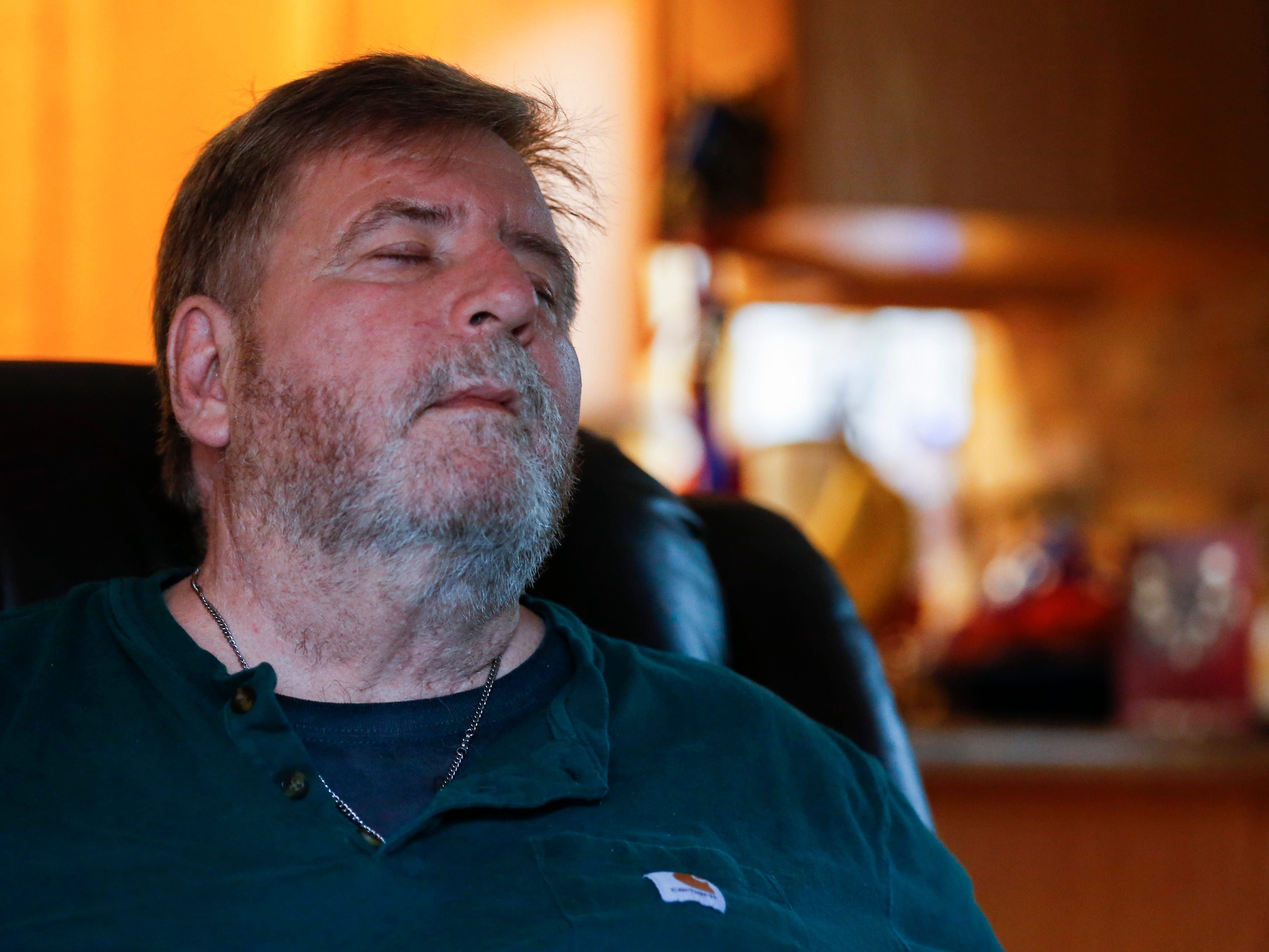 Scott Morgan closes his eyes in pain at his home in Branson West on Wednesday, Nov. 14, 2018.