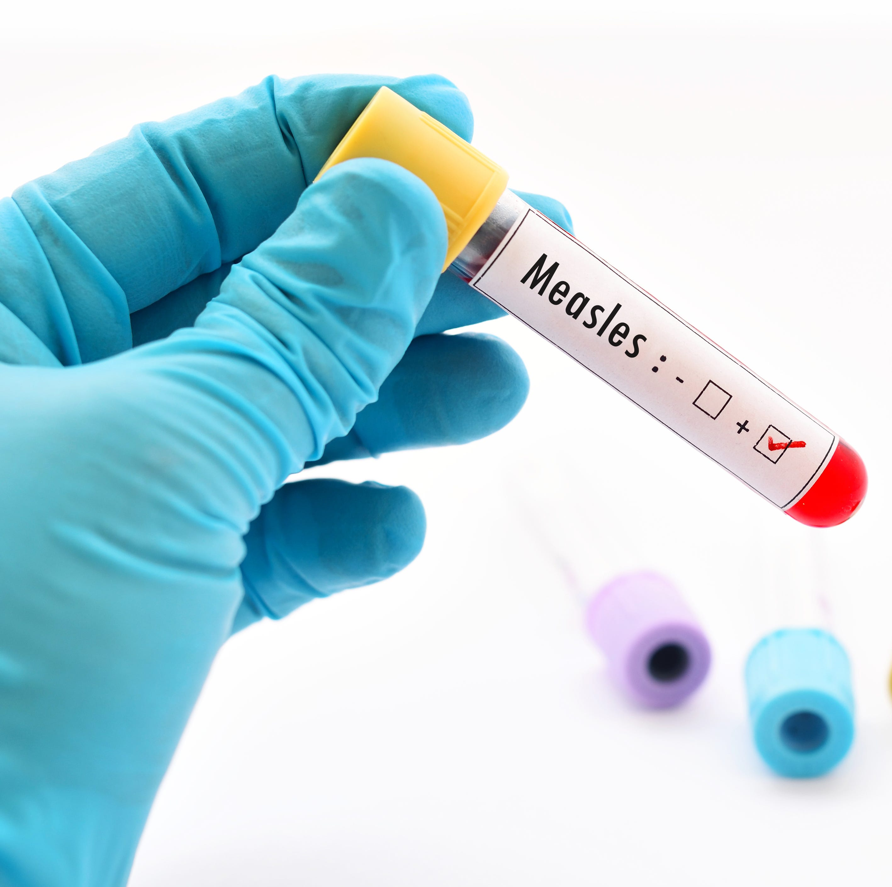NJ measles: 86 Ocean County residents potentially exposed