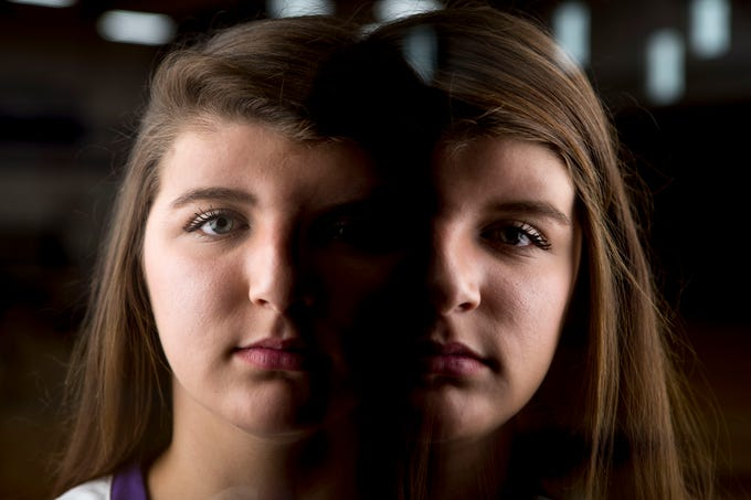 In this photo illustration using in-camera double exposure, Bailee Graves, a senior volleyball player at Milan High School, poses for a portrait in her gym at Milan High School in Milan, Tenn., on Tuesday, Sept. 25, 2018. Graves has had facial reconstruction surgery seven times due to craniosynostosis, a condition in which the fibrous joints between the bones of an infants skull close prematurely, stopping growth of the skull while the brain continues to grow.